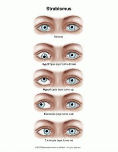 Strabismus (Eye Turn)